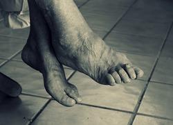 Normal_voeten_ouderen35345